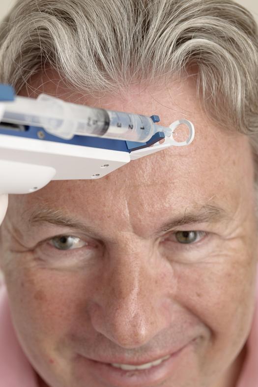 Mesotherapie bei Kopfschmerz & Migräne