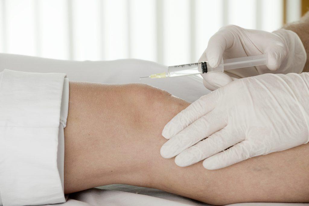 Infiltrationstherapie bei akuten Schmerzen